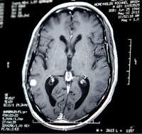 McReynolds' brain scan shows his tumor, the white spot at bottom left, before he began treatment. Almost two years after diagnosis, he's feeling good and working full time, and he credits the clinical trial.