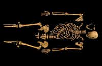 The remains of King Richard III, discovered in 2012 in Leicester, England, show his malformed spine.