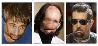 Dallas Wiens (left, in 2008) had been featureless from reconstructive surgeries prior to his full-face transplant.