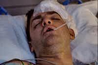 Derek Whitener's skull was fractured when two masked men attacked him. (GoFundMe)