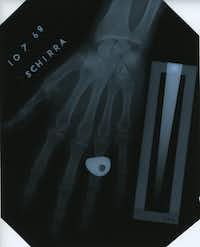 "<p><span style=""font-size: 1em; background-color: transparent;"">Walter ""Wally"" Schirra, commander of the Apollo 7 mission that launched in October 1968, participated in the NASA bone density research study led by Pauline Beery Mack. This X-ray of Schirra's hand is one of several housed in TWU's Blagg-Huey Library in Denton.</span><br></p><p><br></p>"
