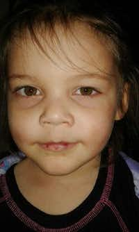 Leiliana Wright's paternal grandparents, Alisa and Craig Clakley, said they sent photos to CPS more than a year before her death, after she visited them with bruises and a cut lip. A social worker reported seeing bruises under the girl's eyes at her mother's home in February 2016.(Clakley family/Clakley family)