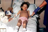 In a photo of Lauren taken at Children's Medical Center Dallas, she had the skeletal look of a Holocaust survivor.(File Photo)