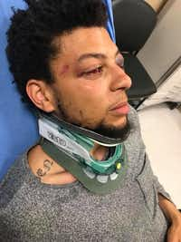 "Jalen Bell says guards at XTC Cabaret in the Stemmons Corridor beat him and his friend ""like animals."" (Courtesy photo)"