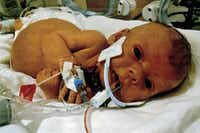 """CORRECTS SPELLING OF SOPHIA AND NATHEN - This undated photo provided by Nathen and Emily Steffel shows their infant daughter, Sophia. Days after Sophia died in a Cincinnati hospital on Thursday, July 10, 2014 from complications from a tumor in her liver, Nathen Steffel asked users on the Reddit website if someone could alter this hospital photo. """"Since she was in the hospital her whole life we never were able to get a photo without all her tubes,"""" he wrote. So far, they have received thousands of messages expressing support and hundreds of photos. (AP Photo/Steffel Family)"""