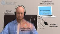 The treatment consists of coupling electrical impulses to stimulate the vagus nerve with audible tones introduced via headphones.Ben Porter - Submitted