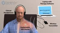 The treatment consists of coupling electrical impulses to stimulate the vagus nerve with audible tones introduced via headphones.(Ben Porter - Submitted)